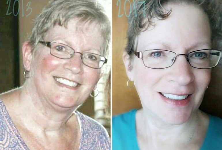 Linda's eating clean - before and after - whole30 weight loss success